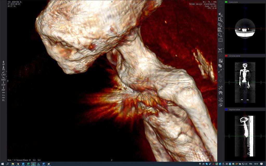 Les momies à 3 pouces de Nazca sont de retour et peuvent être réelles
